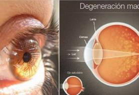 Werfen Sie Ihre Brille weg: Diese Zutat wird Ihnen helfen, Ihre Vision von 97% natürlich zu erhöhen!