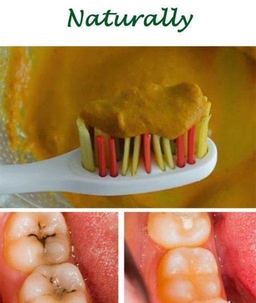 Umgekehrte Hohlräume natürlich und Heilung von Zahnverfall mit dieser leistungsstarken Zahnmaske